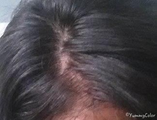 3 semaines après la cure d'oignon